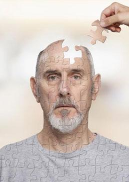Saiba como prevenir e tratar o Alzheimer